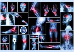 Entzündungen - Nahezu jedes Organ und jeder Körperbereich kann sich entzünden.